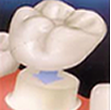 Restorative Dental Treatment