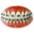 Comprehensive Orthodontic Care