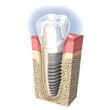 Surgical and Implant Dentistry