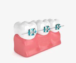 Braces-Orthodontic-Dr-Noeen-Islamabad