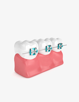 Braces-Orthodontic-Dr-Noeen-Islamabad