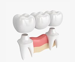 Restorative Dental Treatment-Islamabad